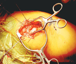 Hendren Retractor in Surgery
