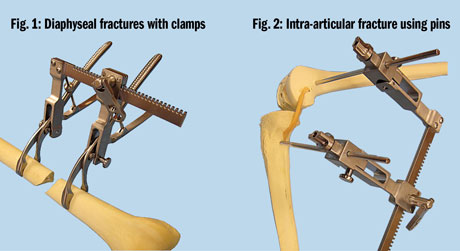 Femur/Tibia Fracture Distractor